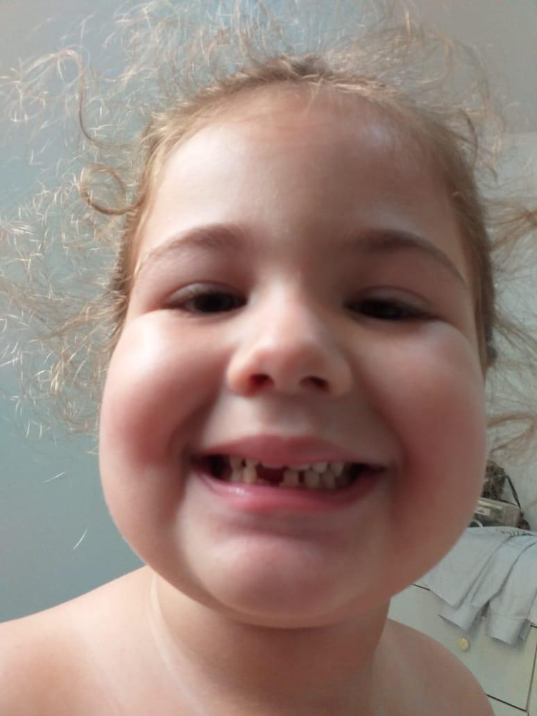 Minha princesa perdeu o primeiro dentinho com 4 anos. Alguém sabe me informar se é normal cair tão cedo?  #dentista #praiadacosta #vilavelhapic.twitter.com/S8odSFSy5a