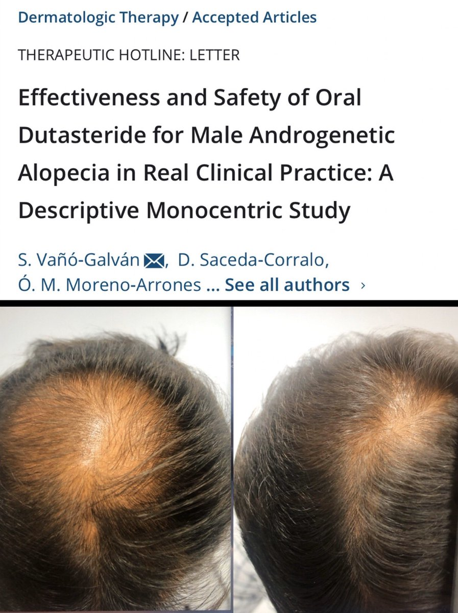 Dr Sergio Vano On Twitter Just Accepted Our Article About The Real Life Use Of Oral Dutasteride In 307 Men With Androgenetic Alopecia New Data About The Effectiveness And Safety Of Low Dose