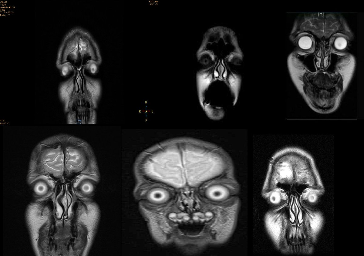 yesterday discovered that frontal MRI scans make for amazing creature design <br>http://pic.twitter.com/JH2succo62