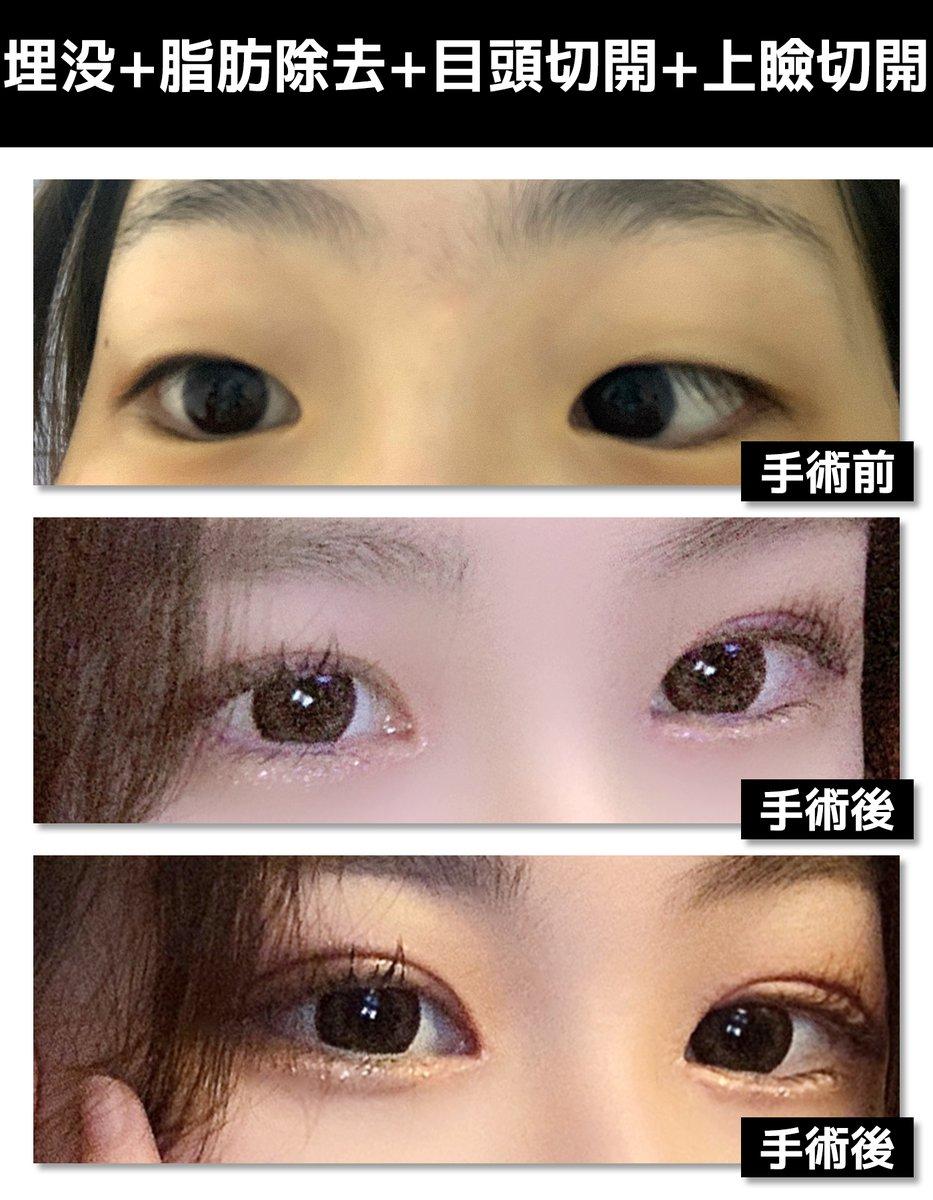 目の整形の症例写真✨手術部位:埋没+脂肪除去+目頭切開+上瞼切開 (3週目)😊:一重で毎朝アイプチを必ずしてたのに、今はすっぴんも人間っぽくなって満足してますㅠㅠㅠHP :    LINE ID: @pgs7984p#シナジー整形外科、#目整形、#切開、#埋没、#韓国
