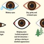 Image for the Tweet beginning: What is thyroid eye disease?