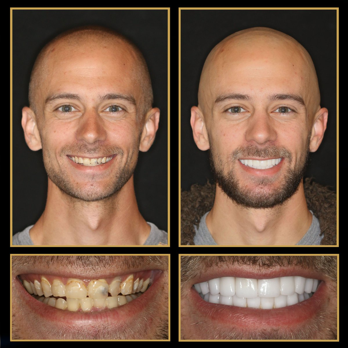 Check out our new #smilemakeover recipient, Ryan. Look at his amazing transformation! We always love seeing what #veneers, crowns, bridges, #dentalimplants and #reconstructivedentistry can do to change a client's life http://TheCosmeticDentistsOfAustin.com #TransformationTuesdaypic.twitter.com/Y9OY0OcQQf