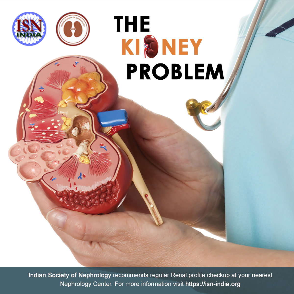 Dr Narayan Prasad On Twitter Kidney Failure Occurs When Your Kidneys Lose The Ability To Sufficiently Filter Waste From Your Blood Many Factors Can Interfere With Your Kidney Health And Function Such