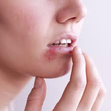 På herpes tegn Herpes simplex