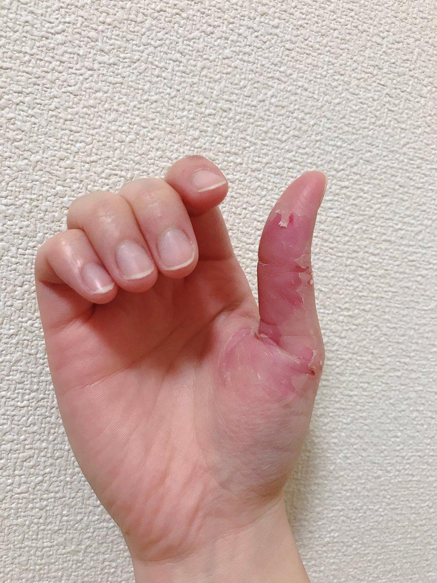皮 を むく 指 癖 の