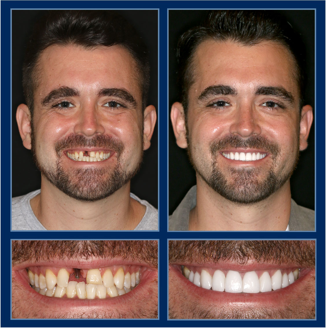 When you come into our office for #veneers, crowns, bridges, #dentalimplants or #reconstructivedentistry, you walk out with pure confidence! http://TheCosmeticDentistsOfAustin.com #smilemakeover #cosmeticdentist #cosmeticdentistry #atxpic.twitter.com/X77EihXO98