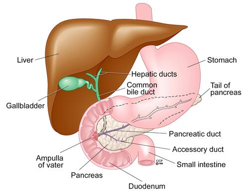 ampulla of vater cancer - 665×608