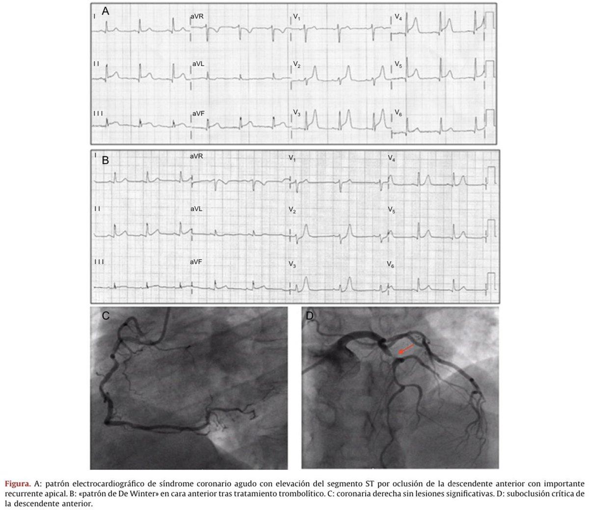 C algoritmo de tratamiento difficile para la hipertensión