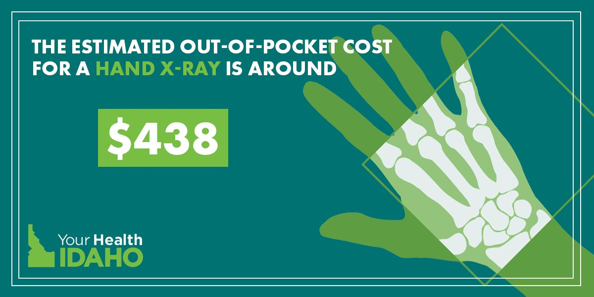 #GetCovered !  In Idaho, the estimated out-of-pocket cost for an x-ray for your hand is around $438! At Your Health Idaho, services like these are considered an Essential Health Benefit and are included in each of our health plans. Learn more:  http://bit.ly/2mdGOUm