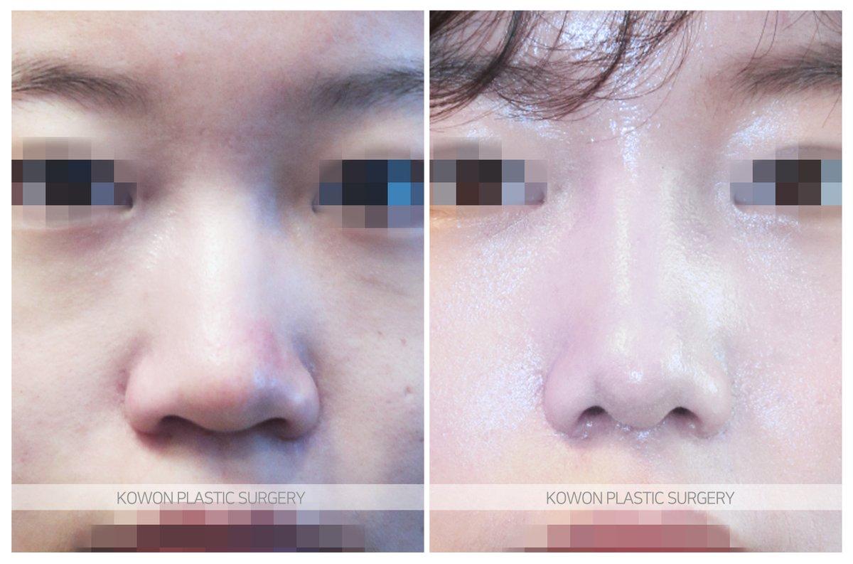鼻 整形 症例