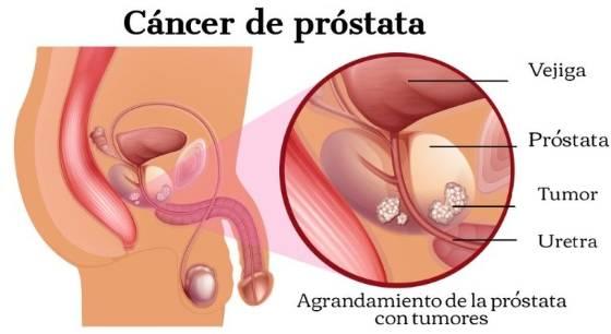 cronología del cáncer de próstata