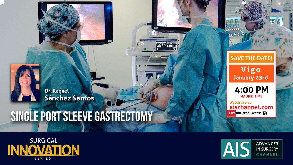 En unas horas nuestra presidenta 👩⚕️Raquel Sánchez Santos👩⚕️ participa en una emisión en directo @AISChannel realizando la técnica de gastrectomía vertical.  🎥Accede al directo🎥 https://t.co/gbezAbc4PJ  #secojoven #seco #gastrectomia #gastrectomiavertical https://t.co/1f3sO4Zm7e