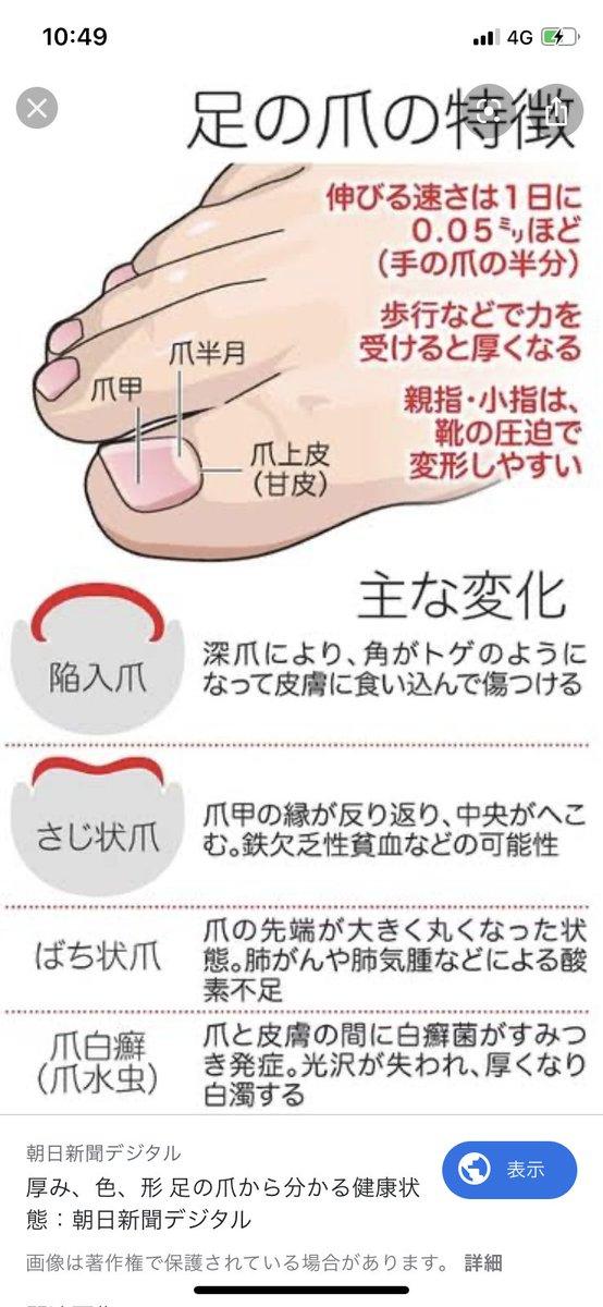 欠乏 症状 鉄 性 貧血