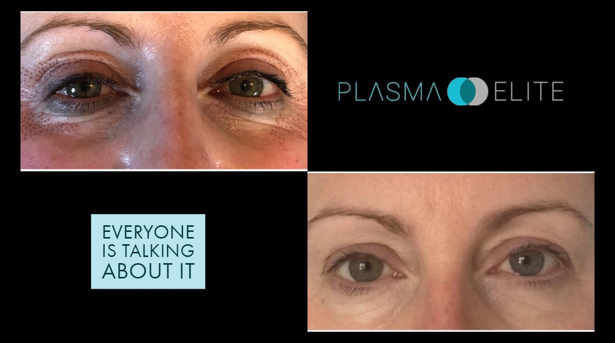 Incredible results after just one session! We've recently reduced a ton of prices on our site, passing on savings from our manufacturer to you meaning you can get results like this for even less. #plasmaelite #skintightening #plasmapen pic.twitter.com/l4AcJoWST1