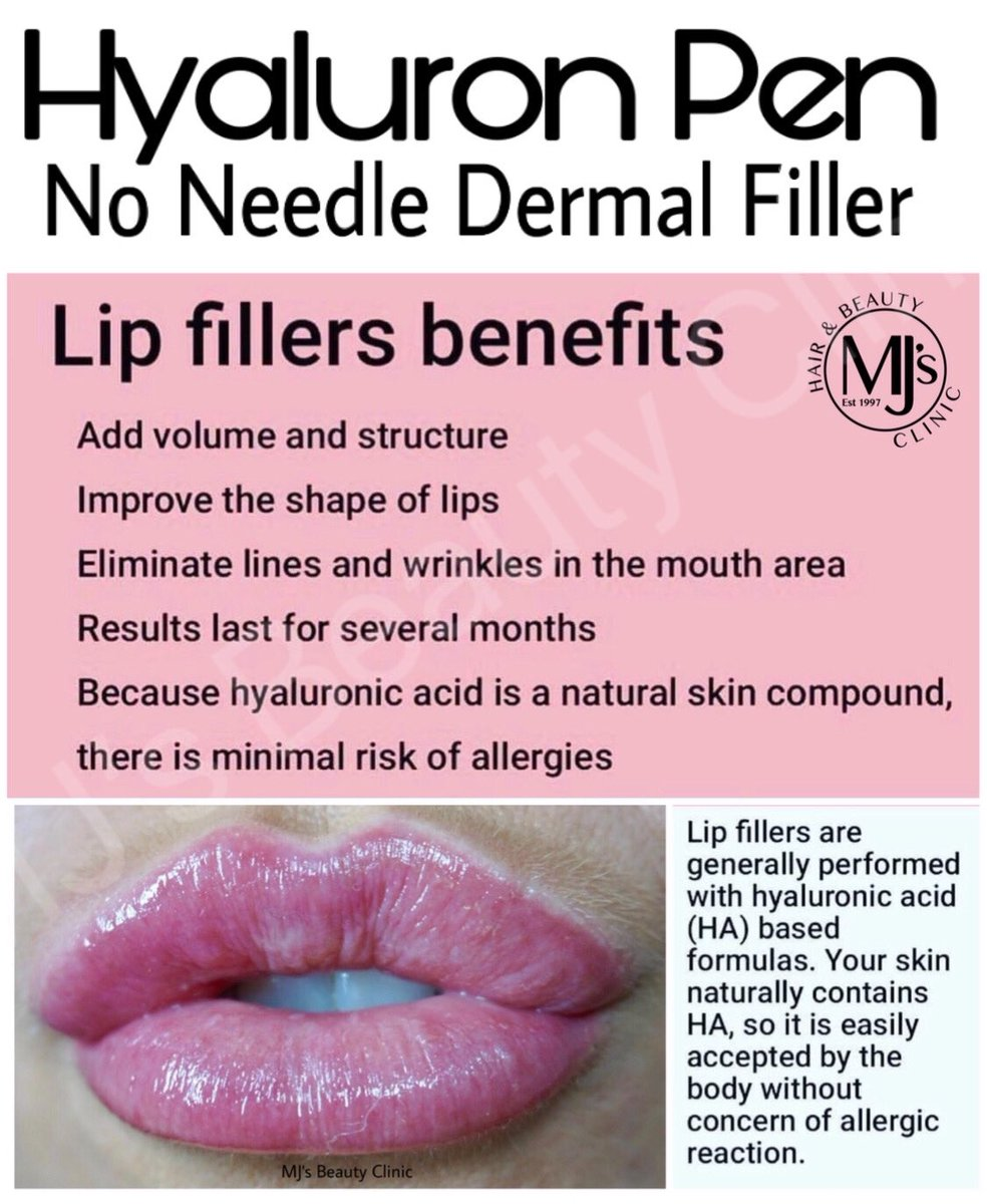 LIP FILLER BENEFITS #Noneedlefiller  Also treats #Nasolabialfolds  #Marionettelines  Want to know more about Marionette Lines then click this linkhttps://www.mjsbeautyclinic.co.uk/marionette-lines …  07955 782378  #royton #mjsbeautyclinic #manchester #advancedtreatments #hyaluronpen #lipenvy #lipqueenpic.twitter.com/WAzYv3YHZ1