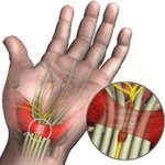 Image for the Tweet beginning: Carpal tunnel syndrome (CTS) is