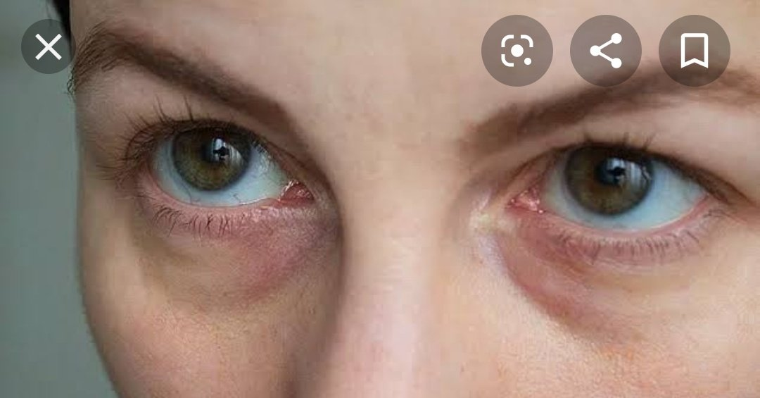 sunken eyes treatment - 952×520