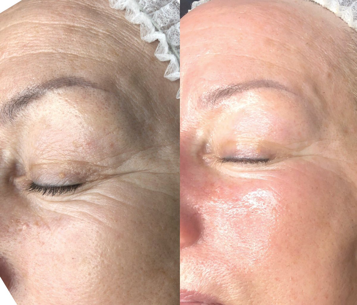 10 Years Younger  After 1 Million Dollar Facial Awesome result  #Milliondollarfacials #milliondollarfacial #Carbonpeel #miraclemask #dermaplane #dermaplaning #skincare #facial #beauty #dermaplaningfacial #facials #microneedling #skinneedlng  #skintherapist #glowingskin  #peelspic.twitter.com/qq7rUSfni7
