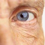 Image for the Tweet beginning: Diabetic retinopathy: Understanding diabetes-related eye