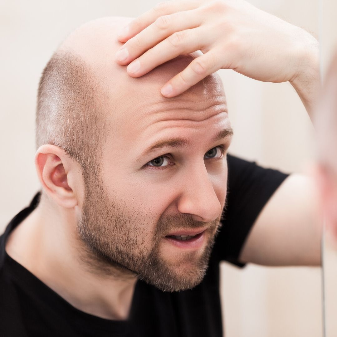 While some will make the transition from a head full of hair to one without any look easy, most times there is quite a dip in an individual's confidence once there are visible signs of balding. Check out our website for help.   #confidence #selfconfidence #hair #hairlosspic.twitter.com/C0XFPycqdW