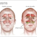 Image for the Tweet beginning: #HomeRemedies: I have #AcuteSinusitis, and