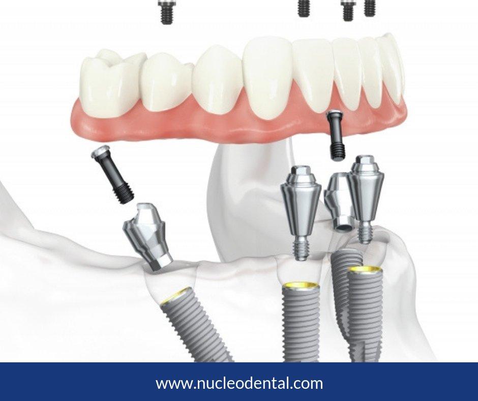 RT @nucleodental: #Sabiasque... A cualquier edad, los pacientes pueden beneficiarse de los #implantes dentales, incluidos los que tienen los siguientes problemas de salud.. https://bit.ly/35WRLLfpic.twitter.com/StiBP6upVU