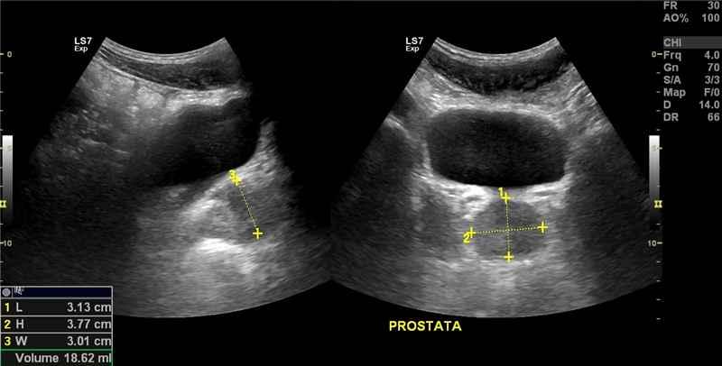 prostate trusp