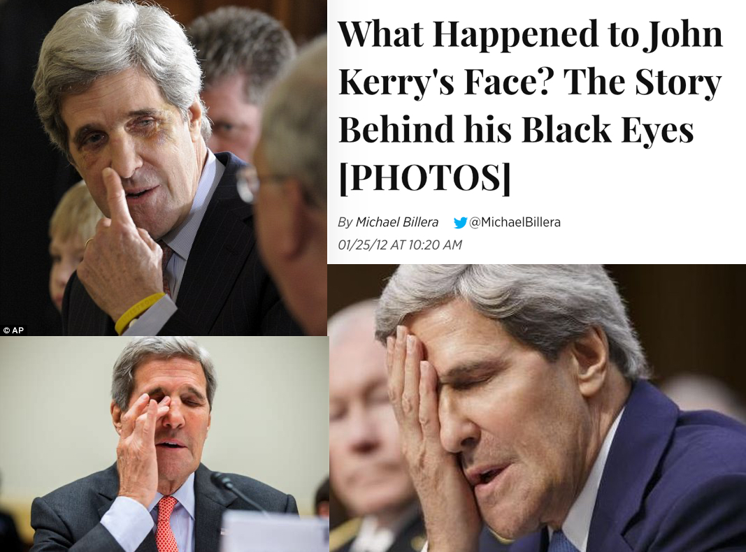 2. John Kerry has had black eyes that he blamed on a family hockey accident.  Many times these black eyes or other eye problems are related to clone maintenance.