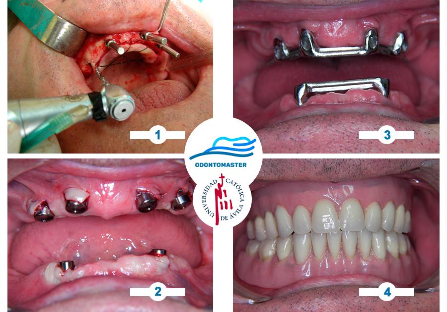 Fotolog #odontomaster #implantologia: Sobredentaduras  Prácticas clínicas en #Brasil del Máster Internacional en Cirugía oral, Implantología y Periodoncia  Sede #ALICANTE | Marzo 2020 | 20 plazas +INFO: https://www.odontomaster.es  #odontologia #periodoncia #masterimplantologia #ucavpic.twitter.com/3py1Zm5Frm