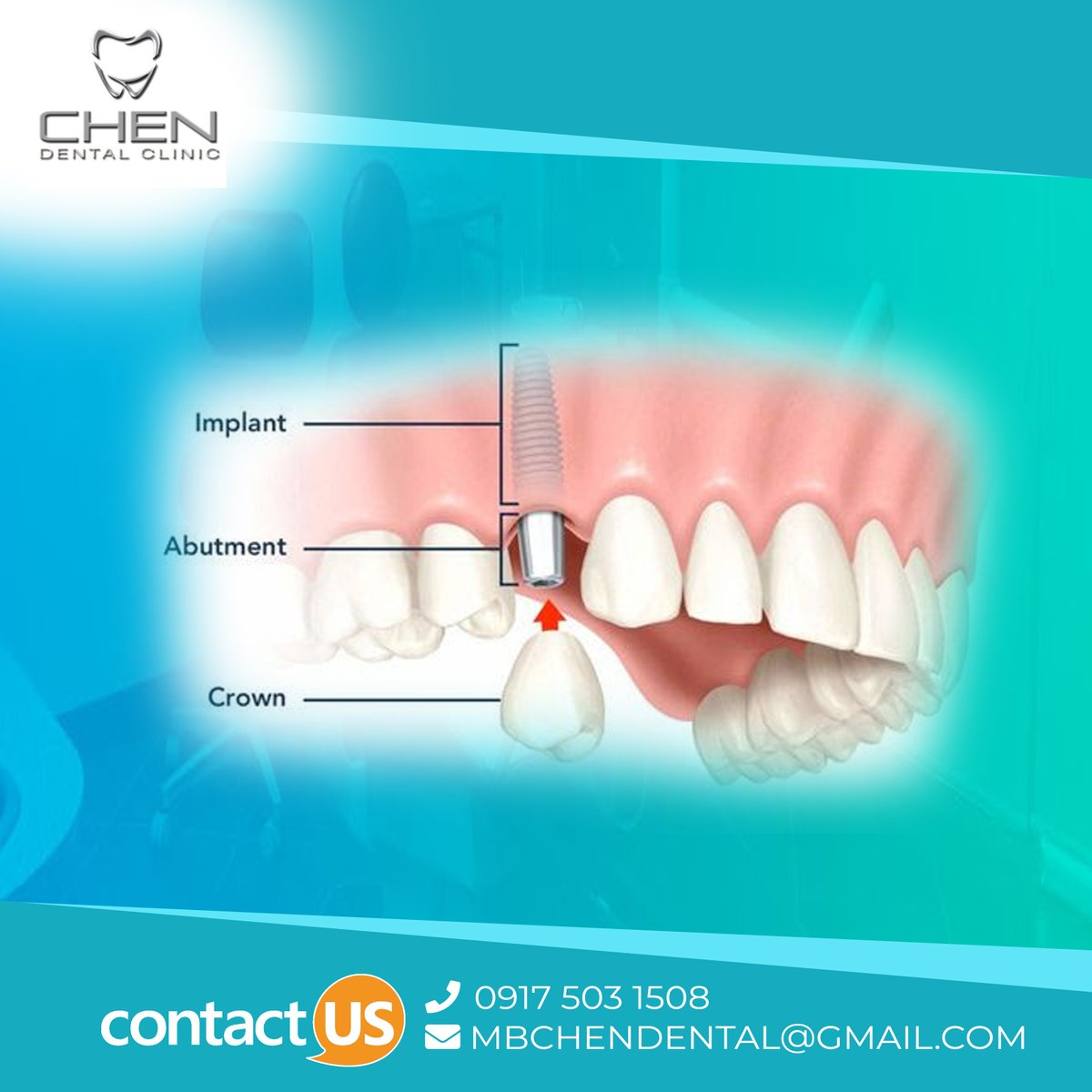 Do you have various #oralhealth diseases like #gumproblem, #cavities, #sensitivity or damaged teeth  etc. At Mbchen #Dental care , our #dentists take digital scans of your teeth to create customized #crowns that fit you perfectly . To restore your smile:  https://mbchendentalclinic.com.ph/services/crown/pic.twitter.com/8iIkzUFArJ