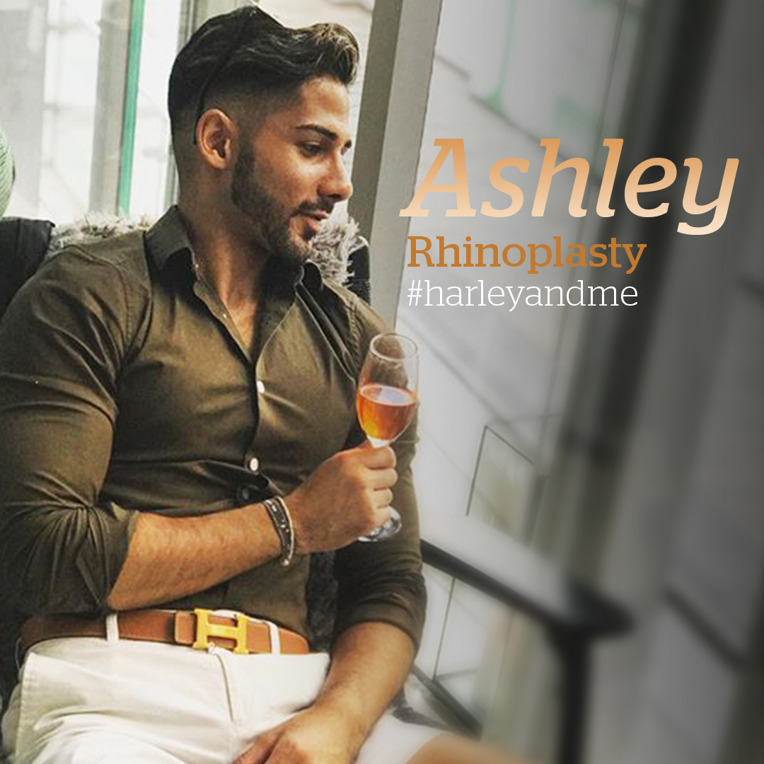 Ashley's amazing profile. LEARN MORE: https://www.harleymedical.co.uk/cosmetic-surgery-for-men/the-face/nose-surgery-for-men?utm_source=twitter&utm_medium=social&utm_campaign=ashley…  #Rhinoplasty #NoseReshaping #NoseJob #NewNose #HarleyMedical #HarleyMedicalGroup #Cosmetic #CosmeticSurgery #Selfie #HarleyAndMe #TheHarleyMedicalGrouppic.twitter.com/WdNY0jChiJ