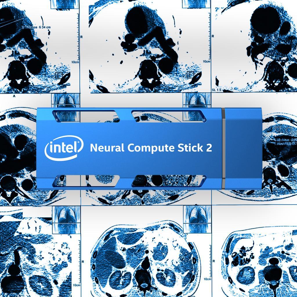 Intel® Neural Compute Stick 2 for Medical Imaging - Intel AI
