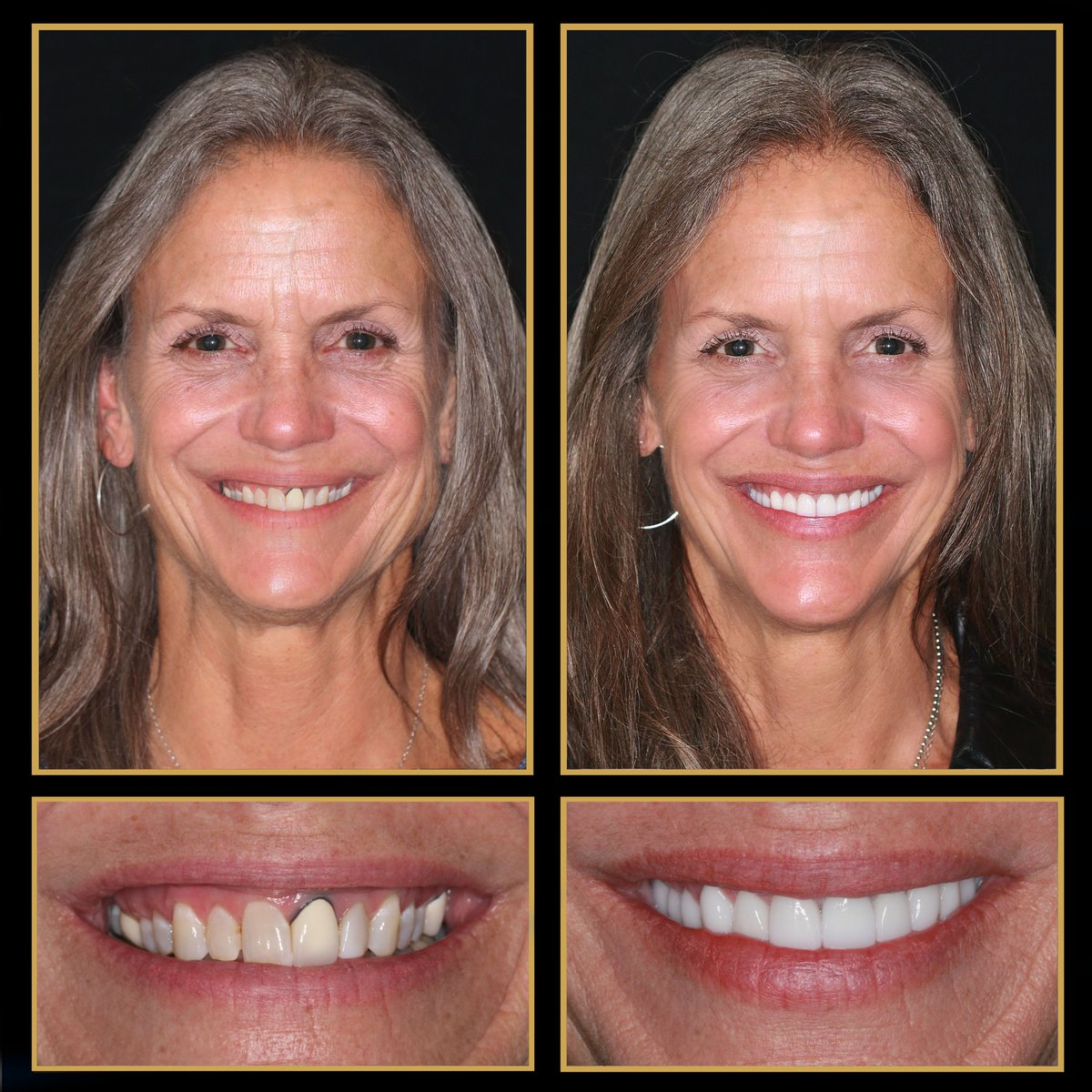 It's simply amazing what an Austin smile makeover can do in just two visits! http://TheCosmeticDentistsOfAustin.com   #CosmeticDentist #CosmeticDentistry #SmileMakeover #Veneers #VeneersCost #VeneersAustin #ATX #ReconstructiveDentistry #DentalImplants #Smile #TransformationTuesdaypic.twitter.com/uoRqQO1xAp