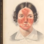 "Vivid depictions of 19th-century acne patients in dermatologists' ""skin atlases"" left Aisha Mazhar wondering if their experiences were similar to hers."