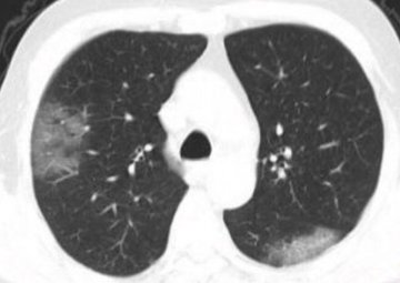 Coronavirus 2019-nCoV, lungs image 1.