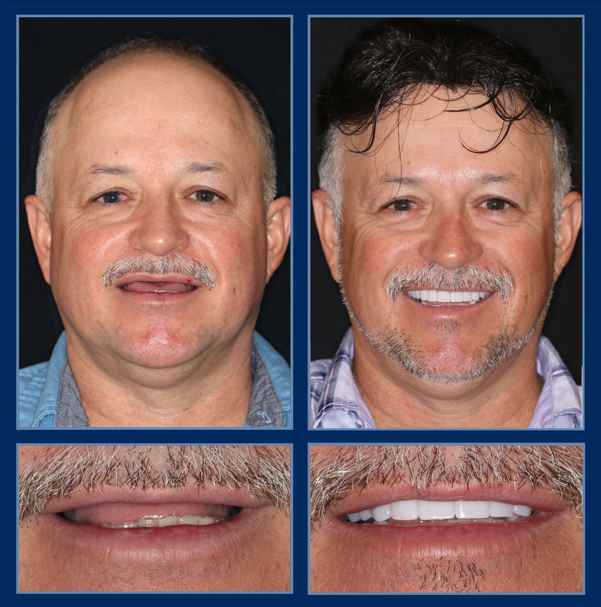"""Sometimes it's more than just making them all say, """"Wow!"""" It can be about starting fresh and becoming a whole new person filled with confidence and freedom. Get your life changing #smilemakeover here: http://TheCosmeticDentistsOfAustin.com #veneers #cosmeticdentist #reconstructivedentistry #atxpic.twitter.com/d823Vg1Q6u"""