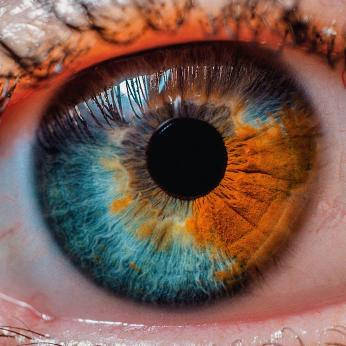 от чего разным цветом глаза картинки с-петербург иногда