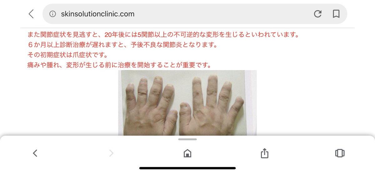 関節 症 性 乾癬