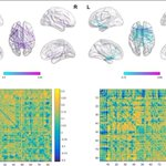 Image for the Tweet beginning: EEG connectivity in frontal brain