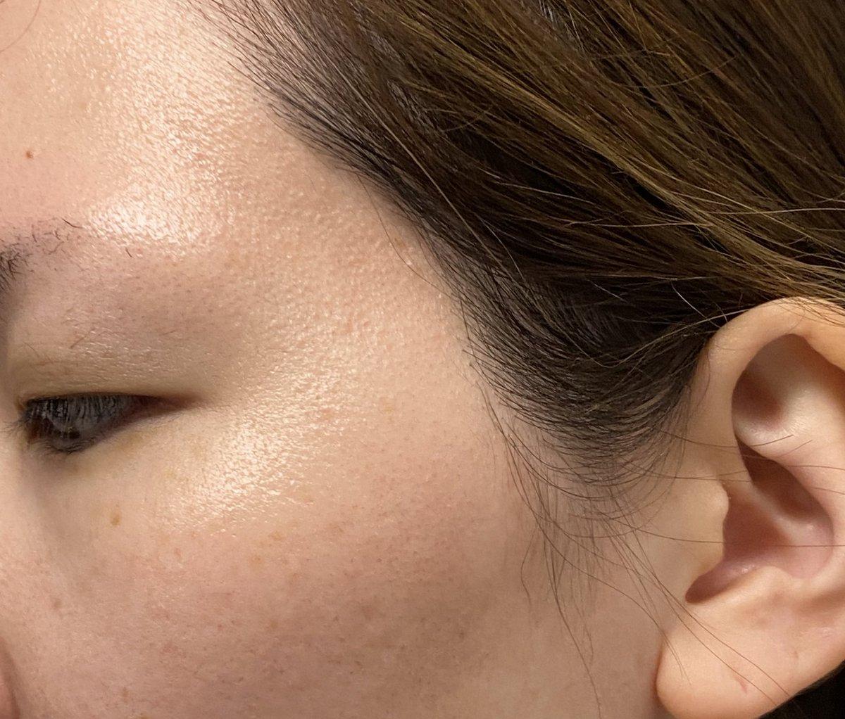 化粧顔も大事だけど、肌の質はもっと大事‼︎ 今からケアしないとシミになるよー😨  これしないと肌突っ張る😱 メナードエステは月2で5000円もかからずエステが受けれるよ‼︎ #MENARD  #メナード #薬用ビューネ  #COLAX #肌ケア