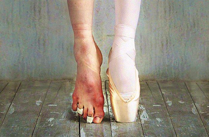#معلومة الإرادة تحتاج إقداماً وليس أقدامًا