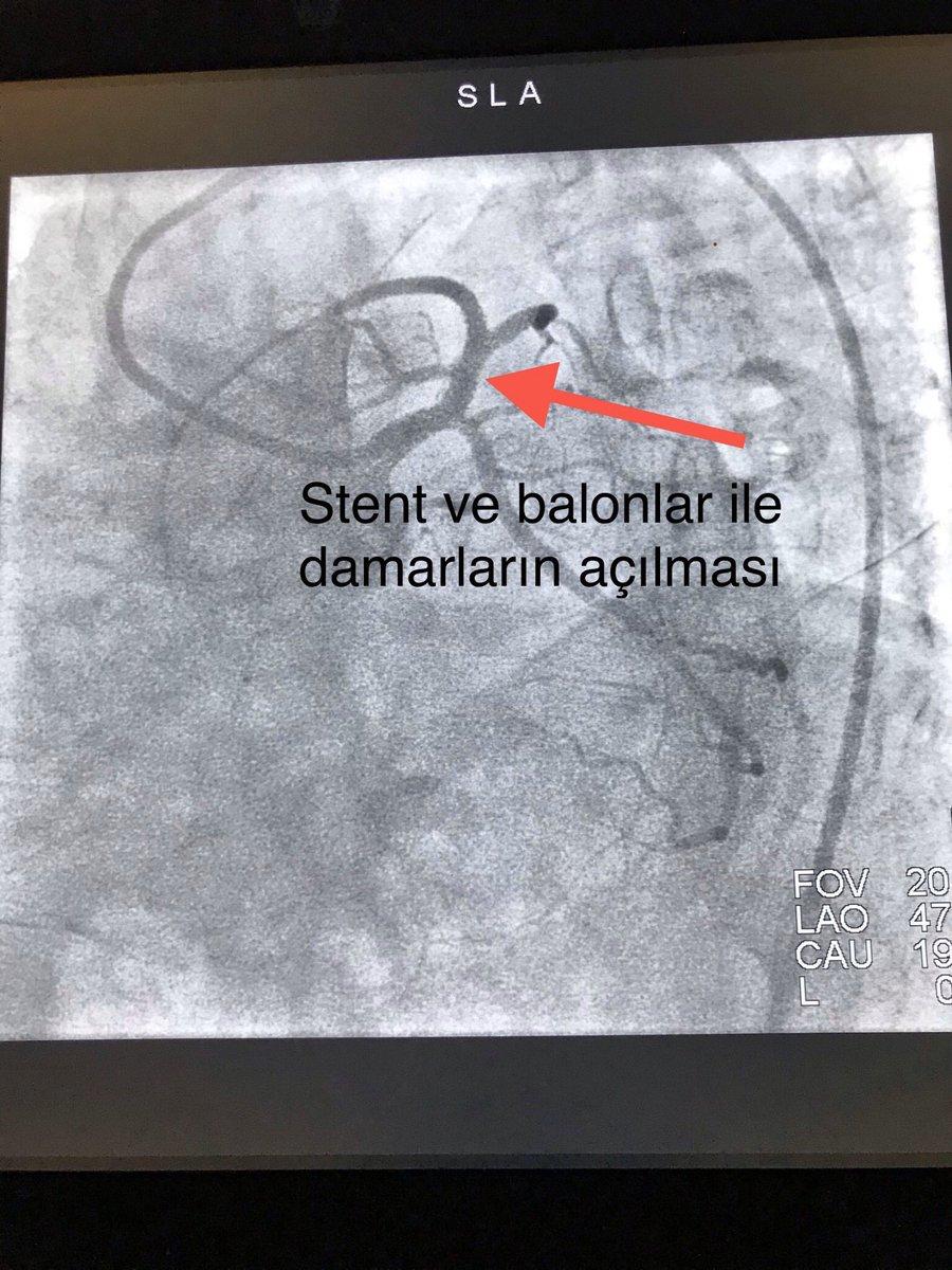 Doç. Dr. M. Kadri Akboğa on Twitter: