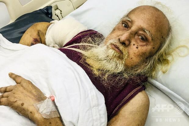【よかった】バングラデシュで長年行方不明の男性、約50年ぶりに家族と再会 https://t.co/wCPDaUo4oH  手術費を払えなかったため、入院している様子をFacebookに投稿。孫の妻が、拡散された動画に気づいた。 https://t.co/h7umLS1FNq