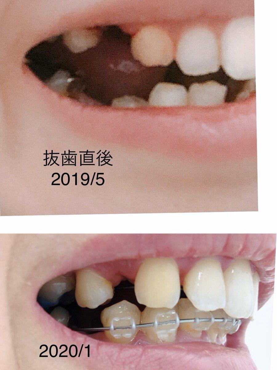 1月調整日でした。抜歯直後から上の歯の隙間が埋まってきてる!最近変化ないからやる気出なかったけどこうみると嬉しい次回はインプラント2本上顎に打って、さらに前歯引っ張る予定。