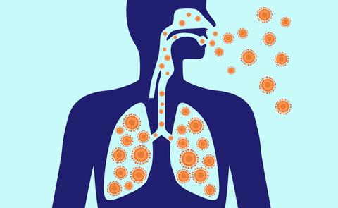 Komplikasi Pneumonia yang Perlu Anda Ketahui