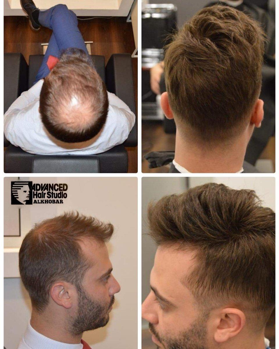 تكاليف غير مباشرة مطلوب سيف تركيب شعر طبيعي للرجال دبي Dsvdedommel Com