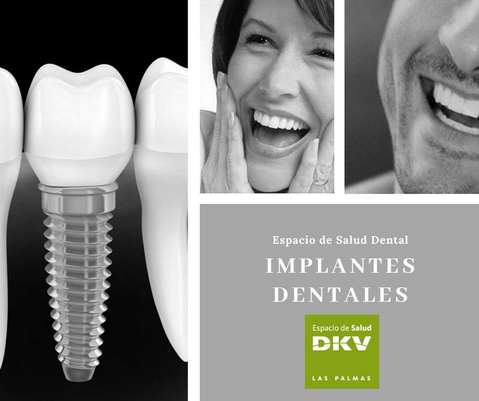 ¿Necesitas #implantesdentales, pero no te convence lo que has visto? Con nuestros #implantólogos, no sabrás diferenciar entre tus dientes naturales y tus nuevos implantes.  ¡Primera cita gratuita y sin compromiso en nuestro Espacio de Salud Dental!  928 09 02 51 pic.twitter.com/OvdyI8w9z6
