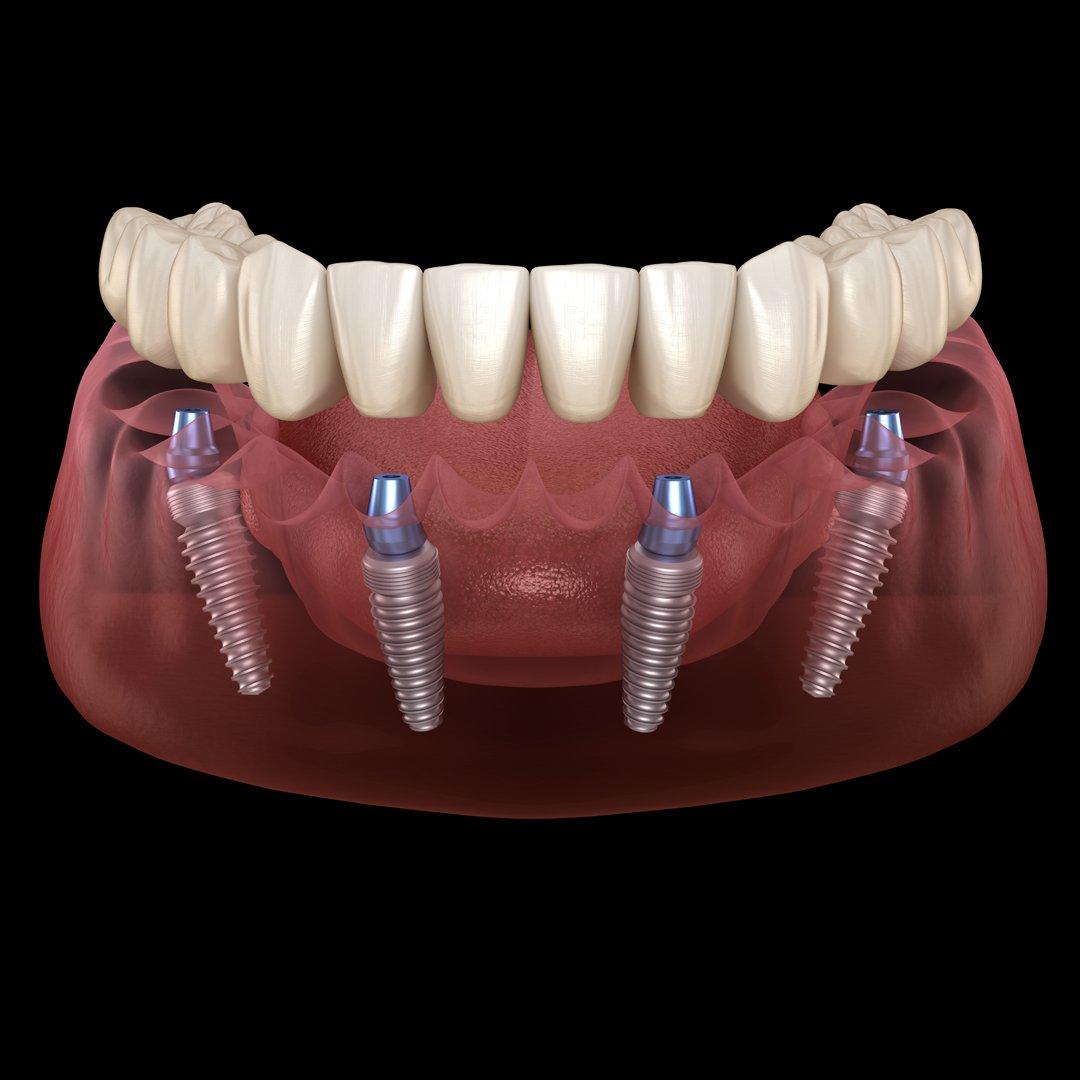 Te contamos las #VENTAJAS de los #Implantes de #CargaInmediata en nuestra clínica:  Nos permite colocar los implantes en la posición más idónea en cuanto a calidad y cantidad de #hueso.  No es necesario abrir la encía por lo que el #postoperatorio es mucho más llevadero.pic.twitter.com/wqU9Djla8I