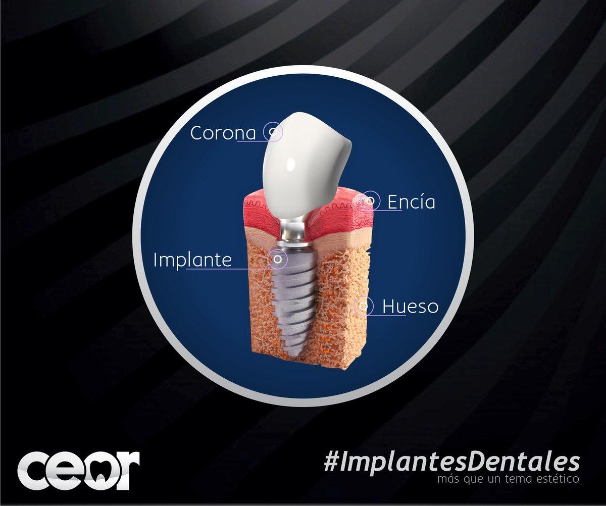 IMPLANTES DENTALES | REHABILITACIÓN ORAL Si perdiste alguna pieza dental, te presentamos al mejor opción en términos de funcionalidad y estética. Dientes como naturales, la #3raDentición . #implantolovers #implantedental #DocPolitopic.twitter.com/r9FFyoHqs9