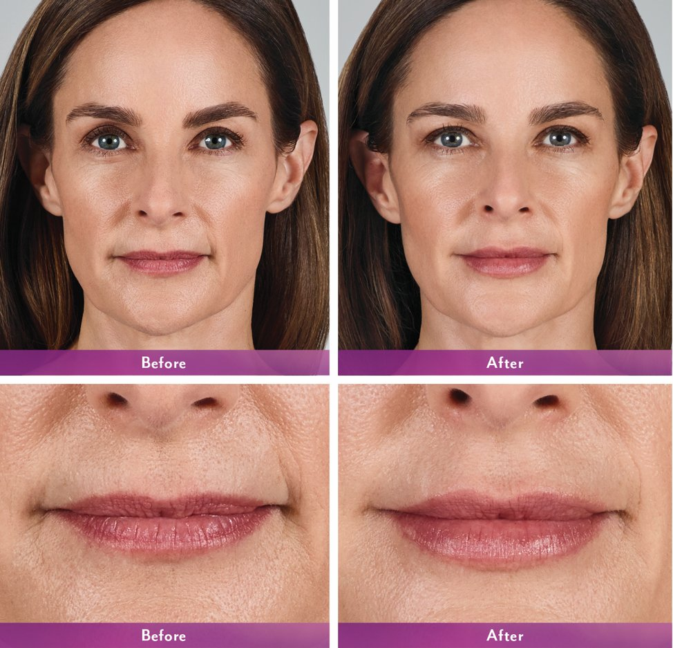 When the corners of your mouth turn down, it can make you look sad or unfriendly. Using Botox to lift the corners and fillers to add some much needed volume- you can turn that frown upside down! #medspa #filler #botox #elevationmedicalspa #lips